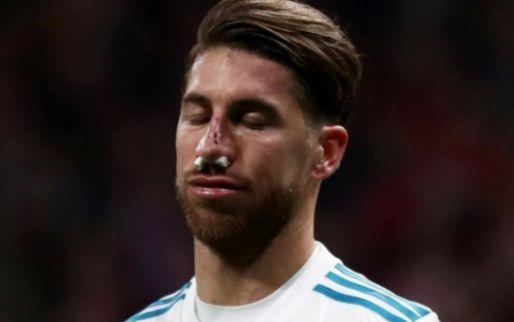 Imagen: Sergio Ramos no pasará por quirófano tras su fractura de nariz
