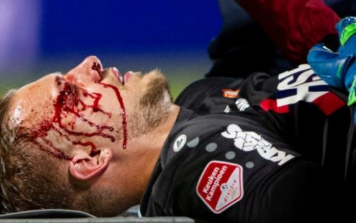 Afbeelding: Zware hoofdblessure voor FC Volendam-doelman: 'Met succes geopereerd'
