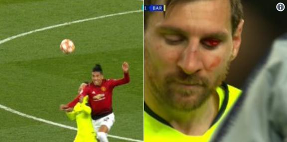 Pijnlijke beelden: Messi blijft achter met bebloed ooglid na beuk van Smalling